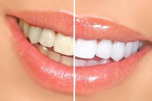 Отчего Темнеют Ваши Зубы
