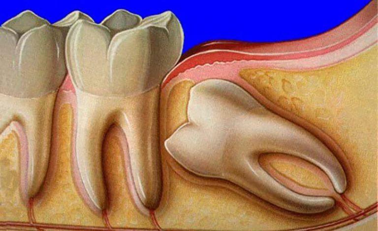 Зубы мудрости когда могут появиться