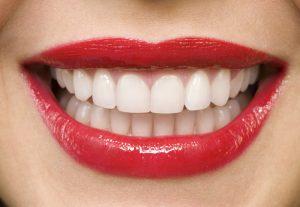 Ատամների սպիտակեցում ստոմատոլոգի մոտ