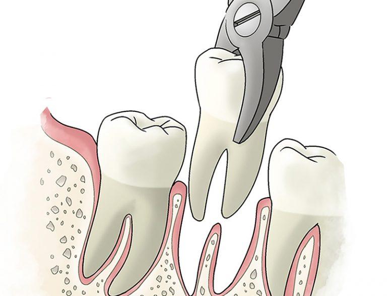 Оракул удаление зуба