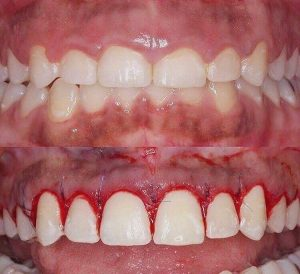 Gingivectomy and tooth restoration