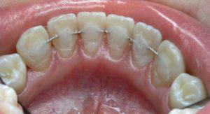 Ատամների շինավորում
