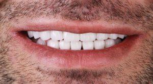 Ատամնաշարի ամբողջական վերականգնում մետաղ-կերամիկական պսակներով