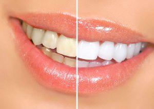 Кому нельзя отбеливать зубы?