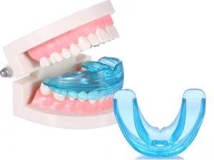 Ատամների թրեյներներ. կծվածքի ուղղում