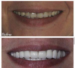 Ատամնաշարի ամբողջական վերականգնում, կծվածքի ծռության ուղղում